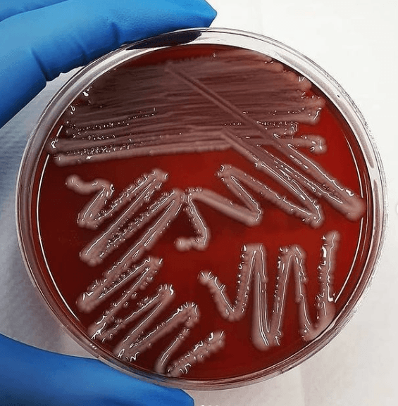 ¿Qué es la Contaminación Biológica? Tipos y ejemplos bacterias